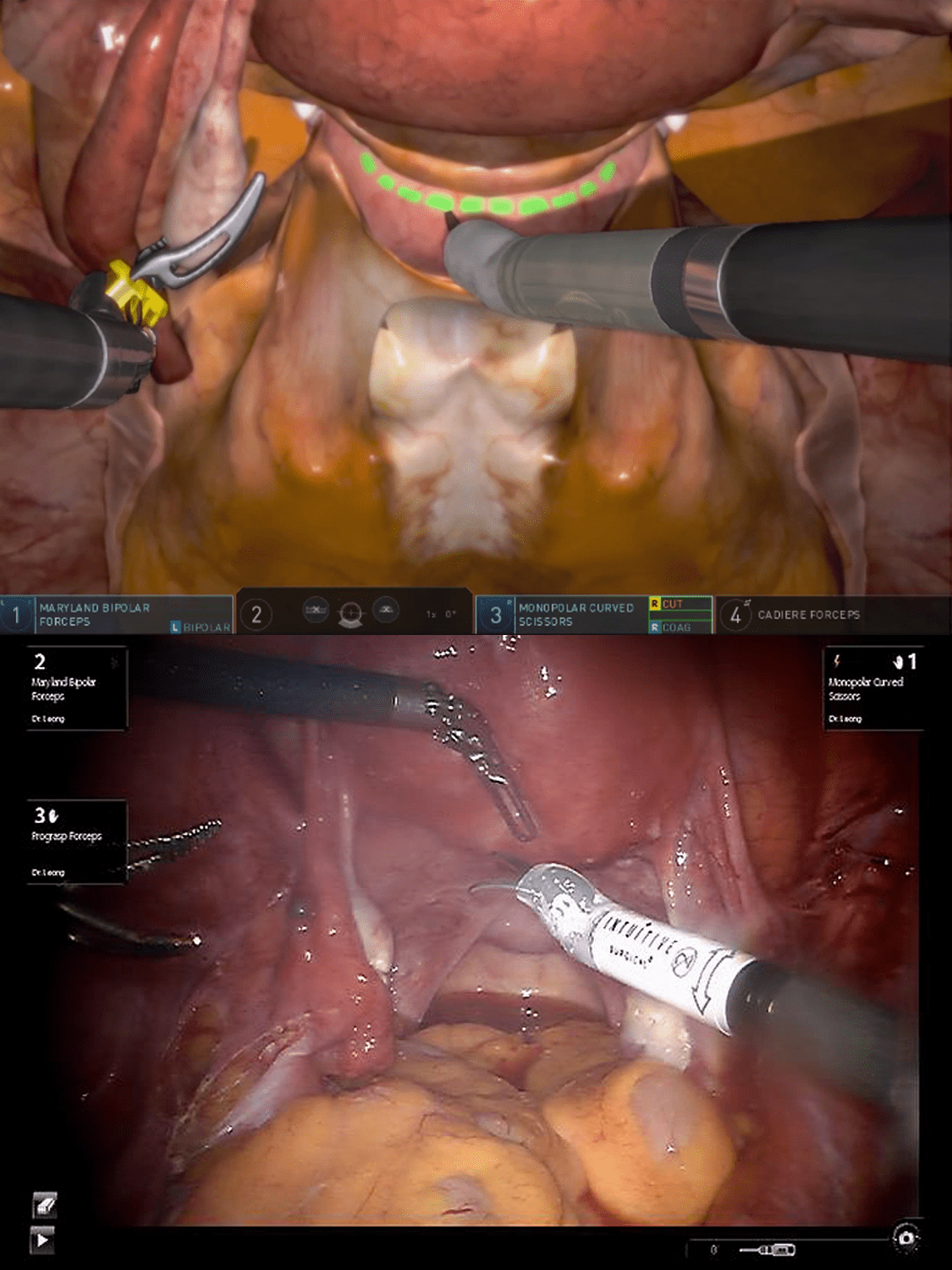 3D Systems Hysterectomy